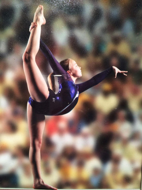 Osteochondritis Dissecans In Gymnasts Midwest