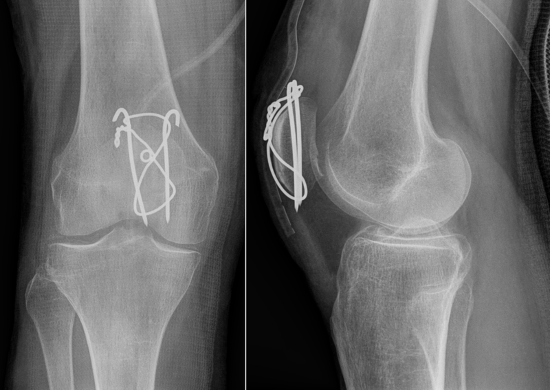 Patella-Fracture-Surgery.png